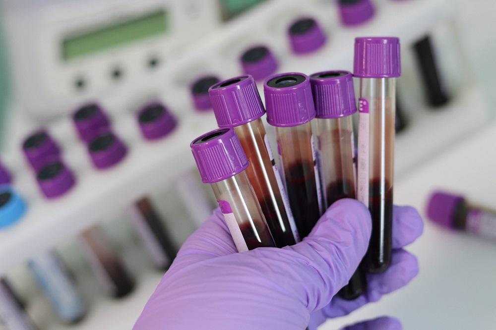 Can a blood test identify depression?