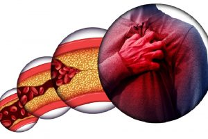 Does cholesterol impact dementia?